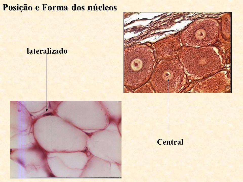 Posição e Forma dos núcleos