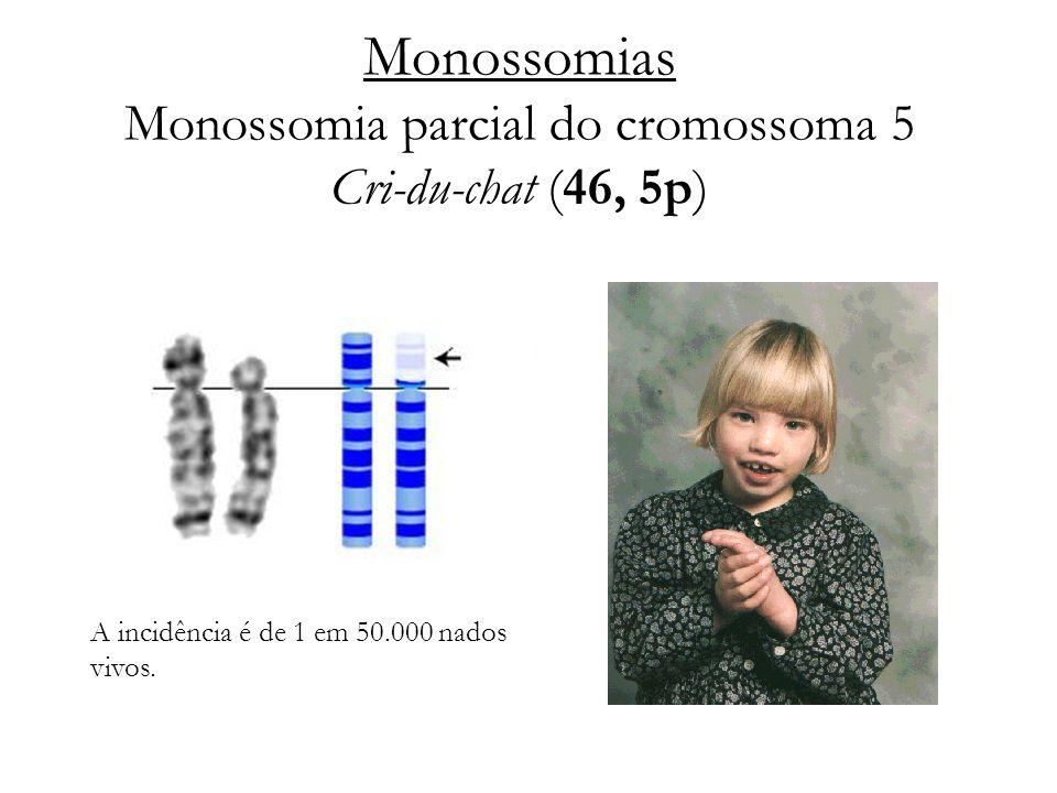 Monossomias Monossomia parcial do cromossoma 5 Cri-du-chat (46, 5p)