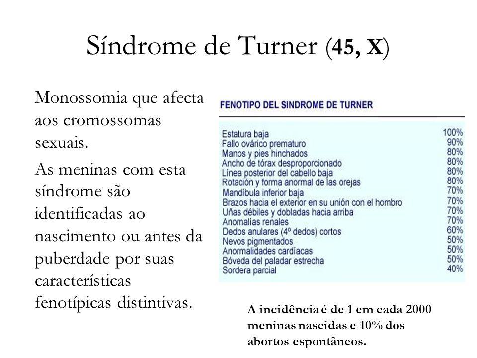 Síndrome de Turner (45, X) Monossomia que afecta aos cromossomas sexuais.