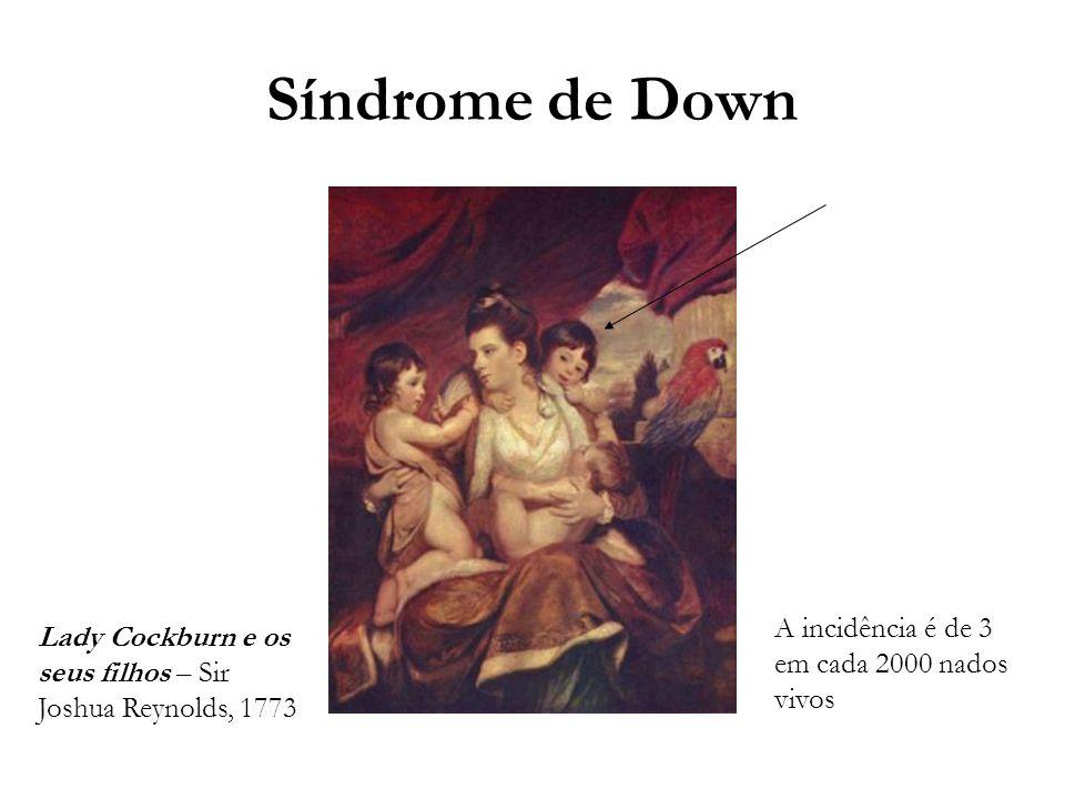Síndrome de Down A incidência é de 3 em cada 2000 nados vivos