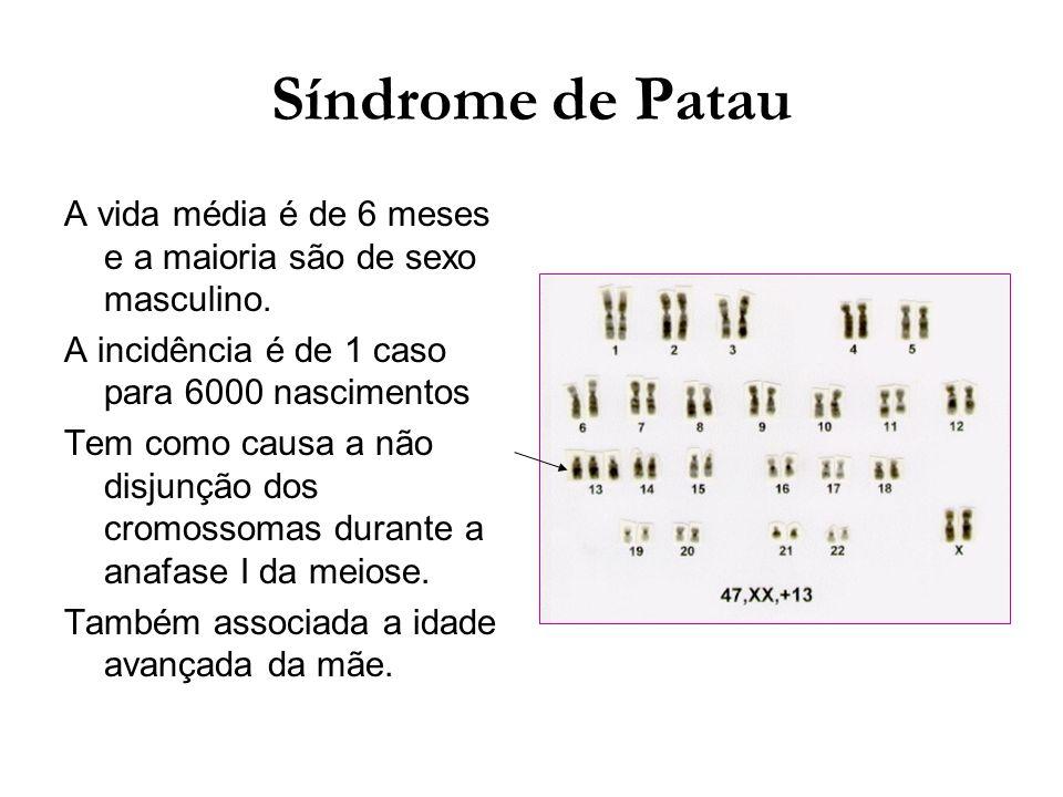 Síndrome de Patau A vida média é de 6 meses e a maioria são de sexo masculino. A incidência é de 1 caso para 6000 nascimentos.