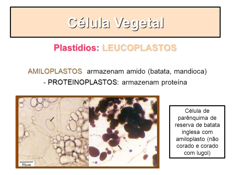 Plastídios: LEUCOPLASTOS