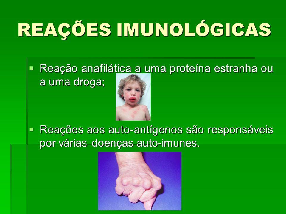 REAÇÕES IMUNOLÓGICAS Reação anafilática a uma proteína estranha ou a uma droga;