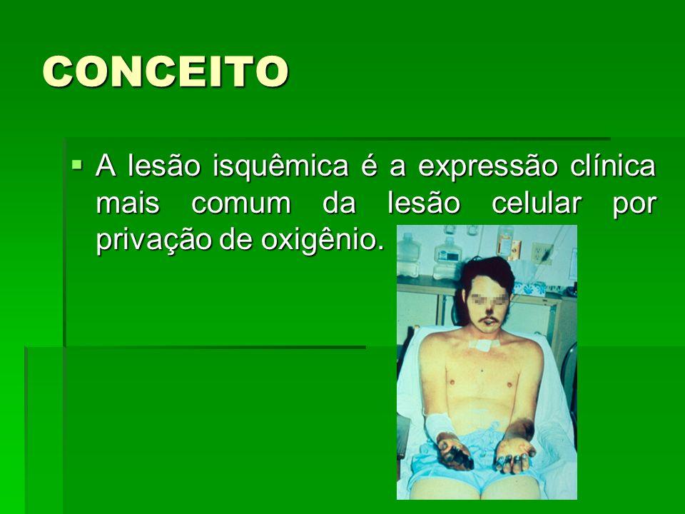 CONCEITO A lesão isquêmica é a expressão clínica mais comum da lesão celular por privação de oxigênio.