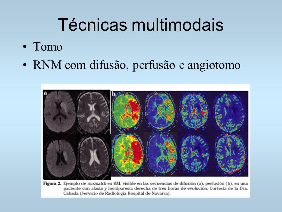 Técnicas multimodais Tomo RNM com difusão, perfusão e angiotomo