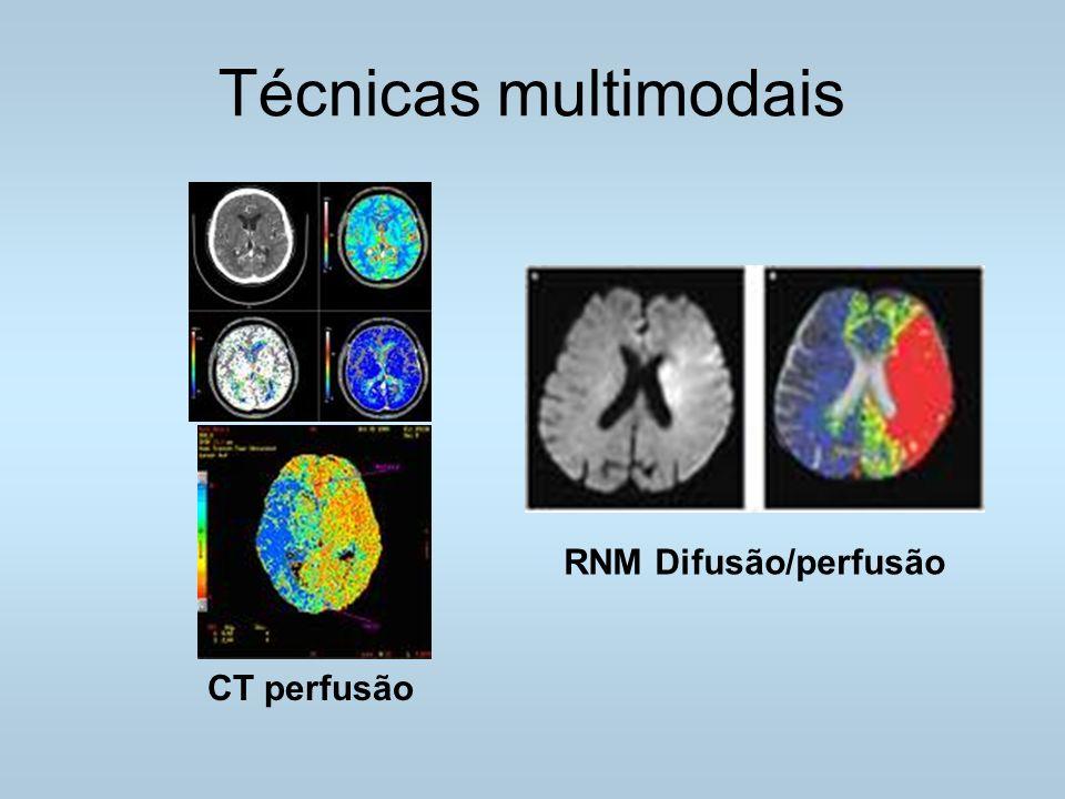 Técnicas multimodais RNM Difusão/perfusão CT perfusão
