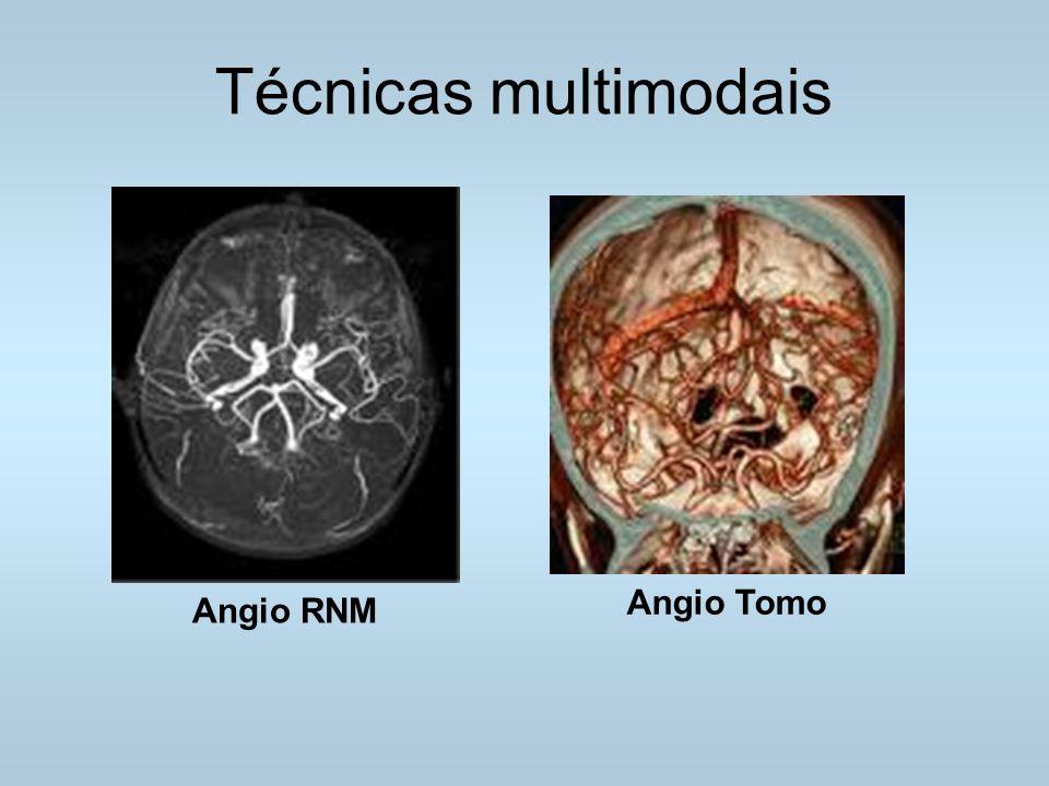Técnicas multimodais Angio Tomo Angio RNM