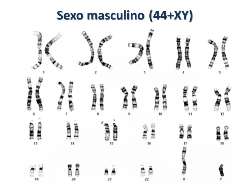 Sexo masculino (44+XY)