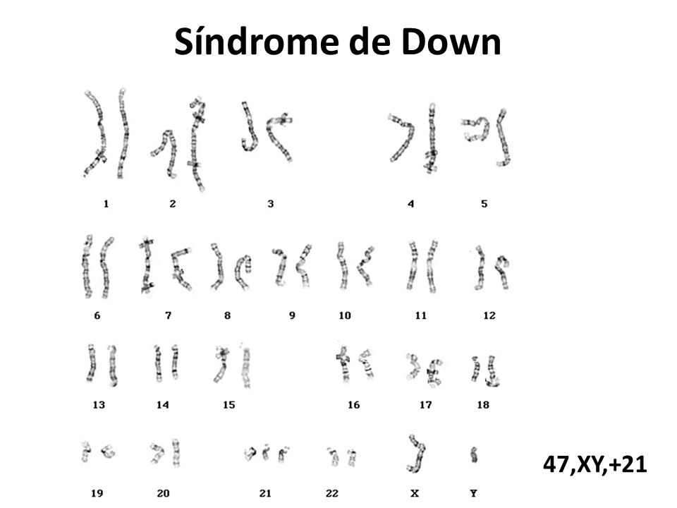 Síndrome de Down 47,XY,+21