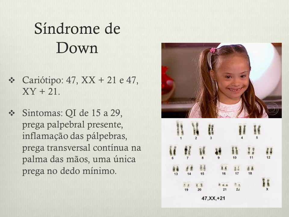 Síndrome de Down Cariótipo: 47, XX + 21 e 47, XY + 21.