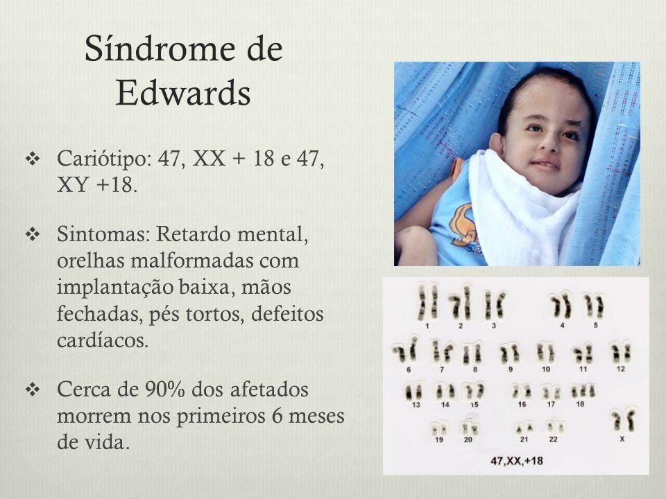 Síndrome de Edwards Cariótipo: 47, XX + 18 e 47, XY +18.