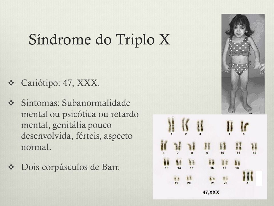 Síndrome do Triplo X Cariótipo: 47, XXX.