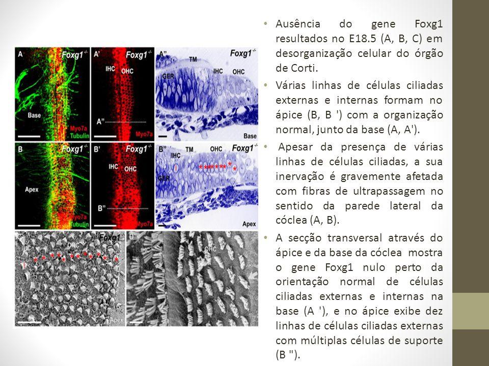 Ausência do gene Foxg1 resultados no E18
