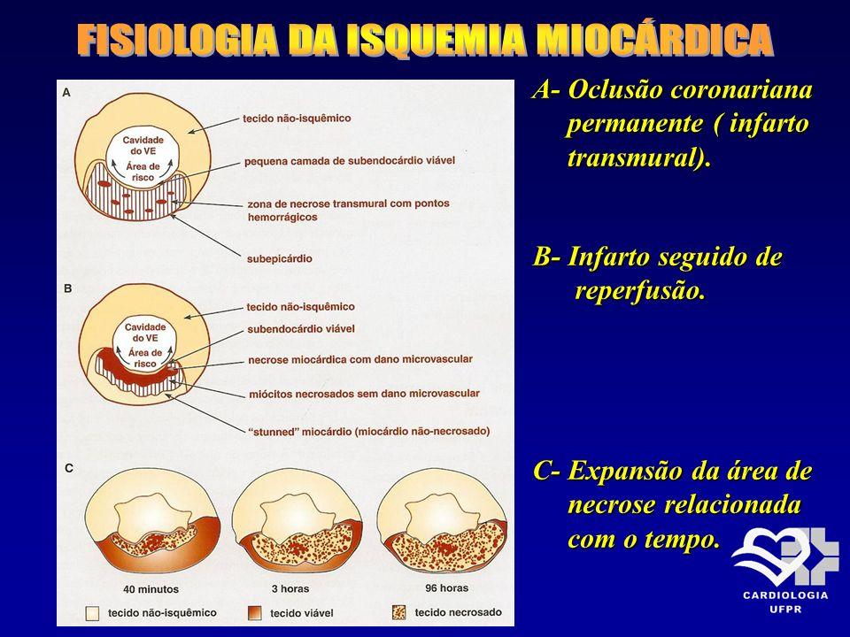 FISIOLOGIA DA ISQUEMIA MIOCÁRDICA