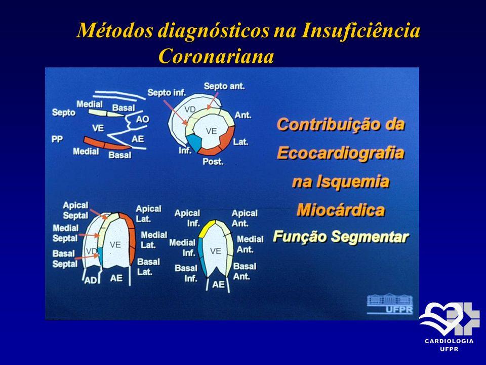 Métodos diagnósticos na Insuficiência