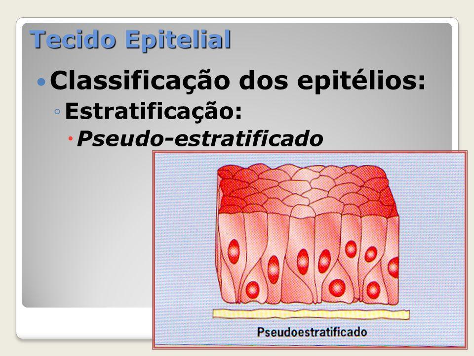 Classificação dos epitélios: