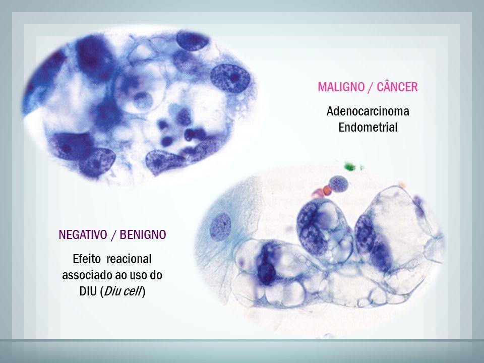 Adenocarcinoma Endometrial