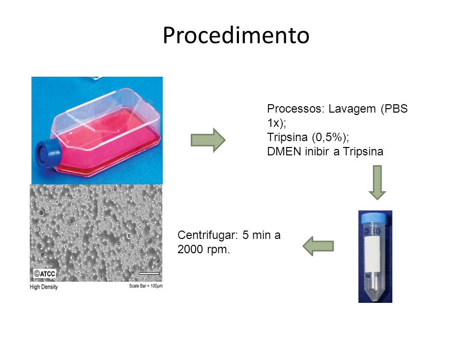 Procedimento Processos: Lavagem (PBS 1x); Tripsina (0,5%);
