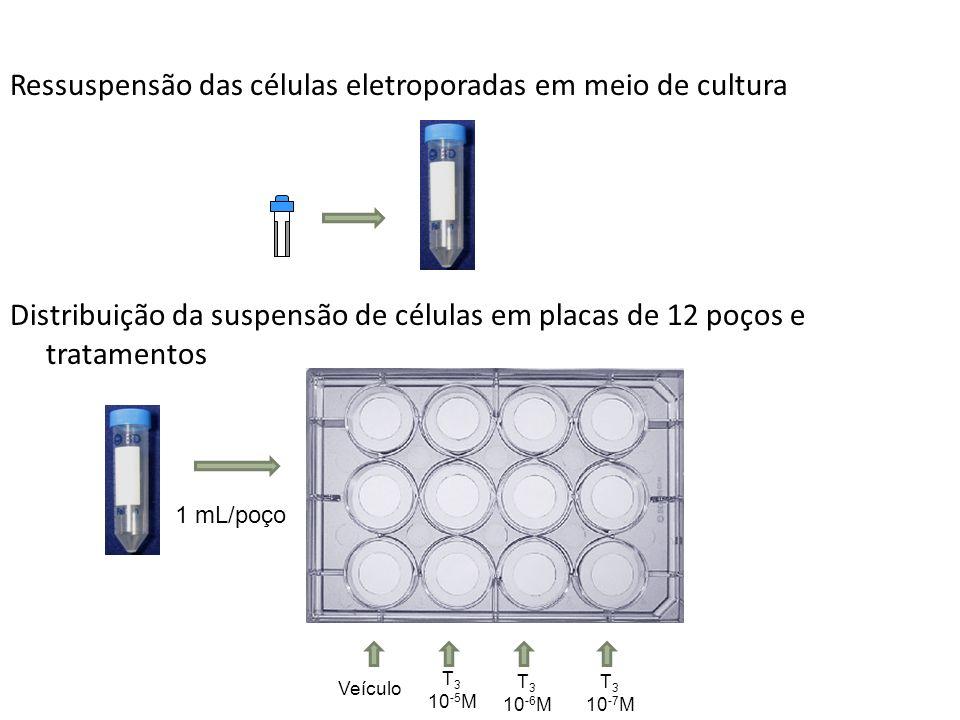 Ressuspensão das células eletroporadas em meio de cultura Distribuição da suspensão de células em placas de 12 poços e tratamentos