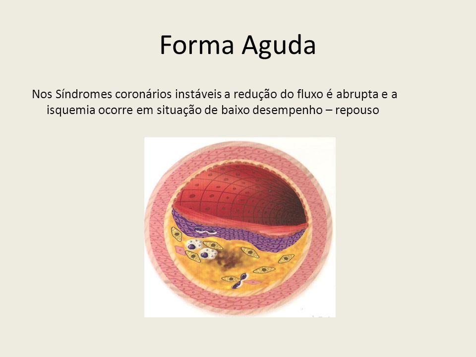 Forma Aguda Nos Síndromes coronários instáveis a redução do fluxo é abrupta e a isquemia ocorre em situação de baixo desempenho – repouso.