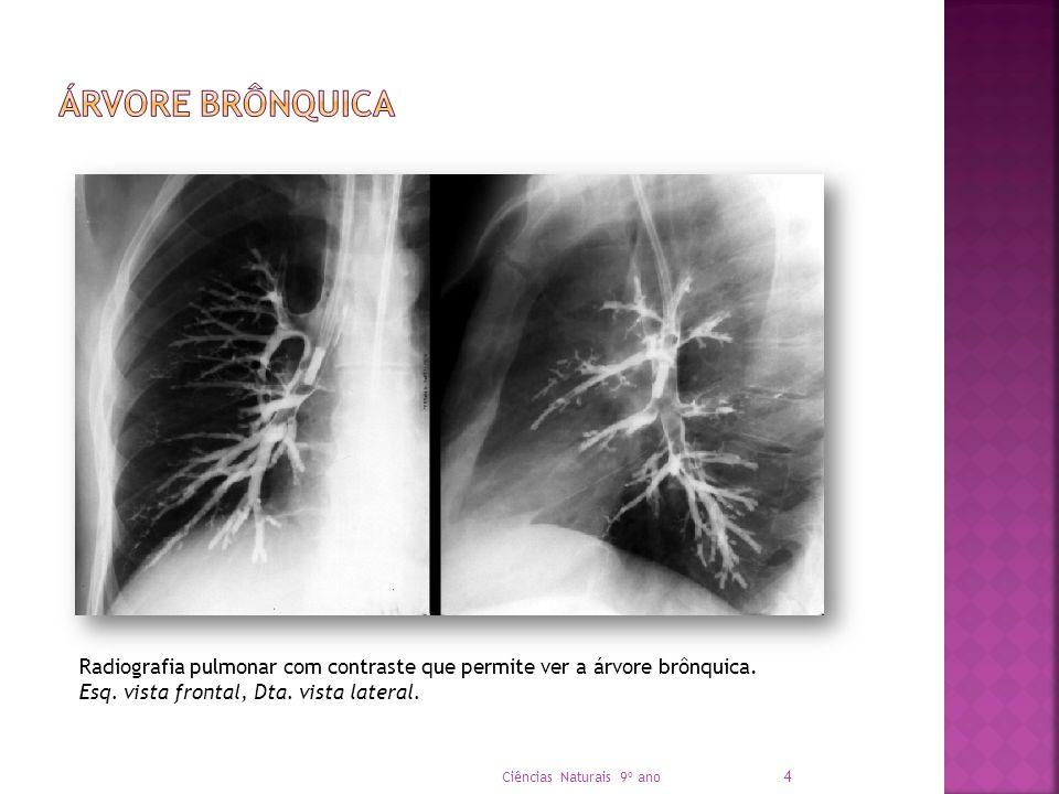 Árvore Brônquica Radiografia pulmonar com contraste que permite ver a árvore brônquica. Esq. vista frontal, Dta. vista lateral.