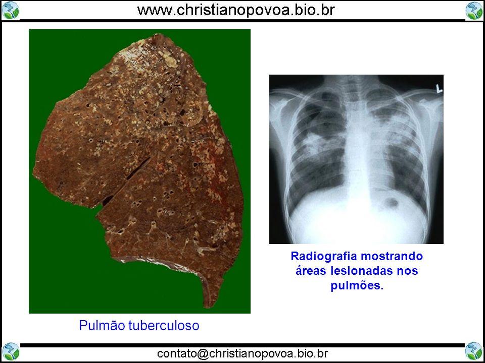 Radiografia mostrando áreas lesionadas nos pulmões.