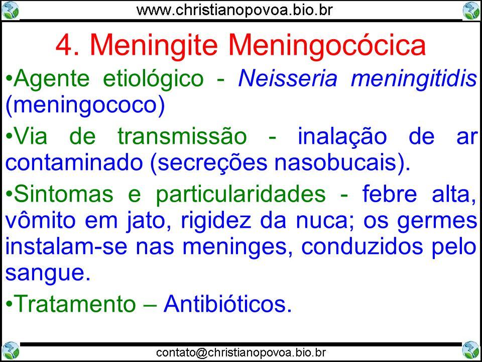 4. Meningite Meningocócica