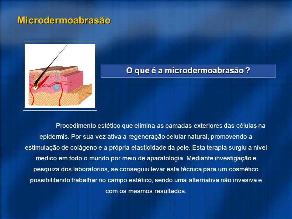 O que é a microdermoabrasão