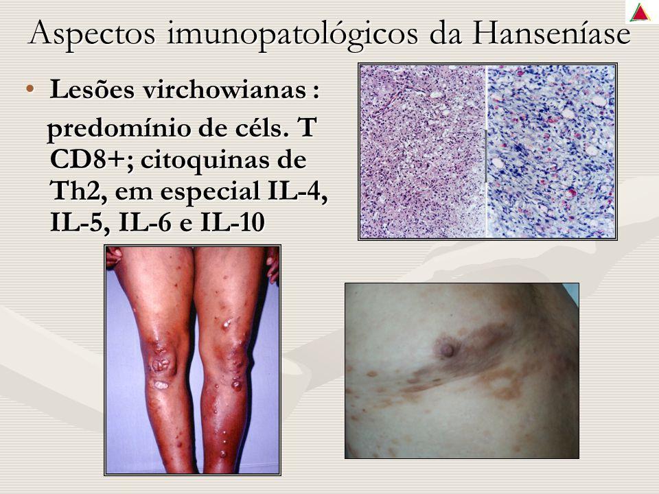 Aspectos imunopatológicos da Hanseníase