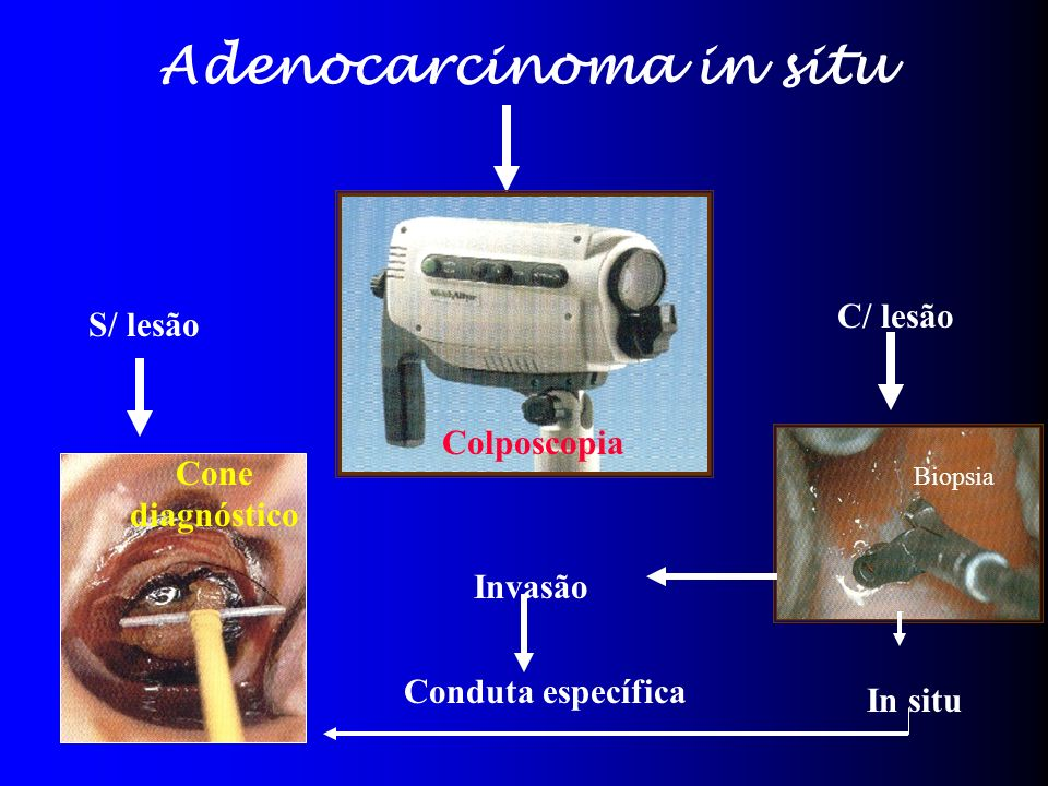 Adenocarcinoma in situ