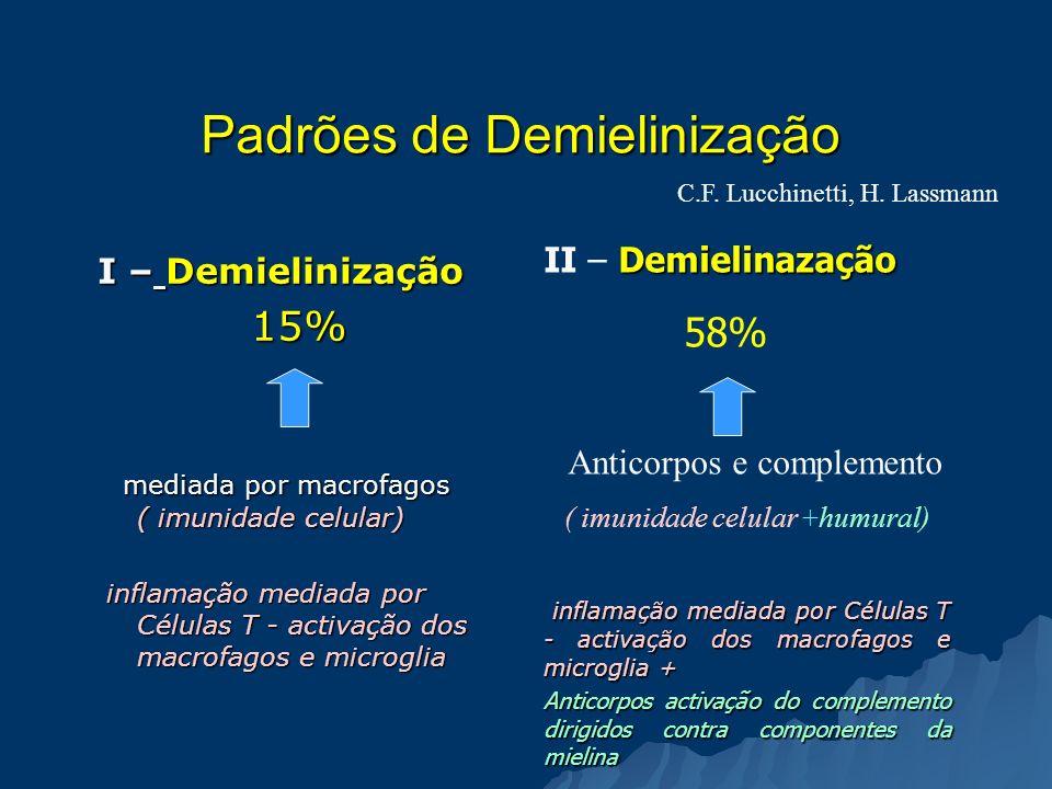 Padrões de Demielinização