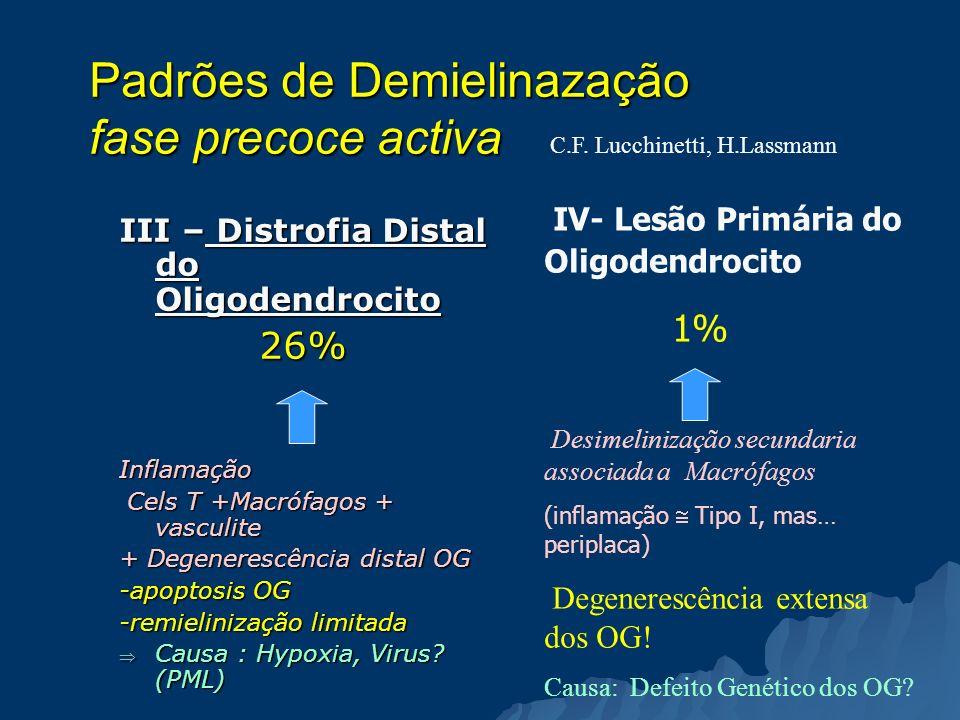 Padrões de Demielinazação fase precoce activa