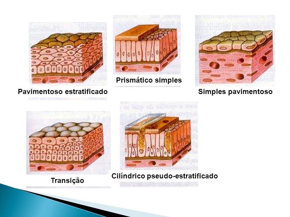 Prismático simples Pavimentoso estratificado. Simples pavimentoso. Cilíndrico pseudo-estratificado.