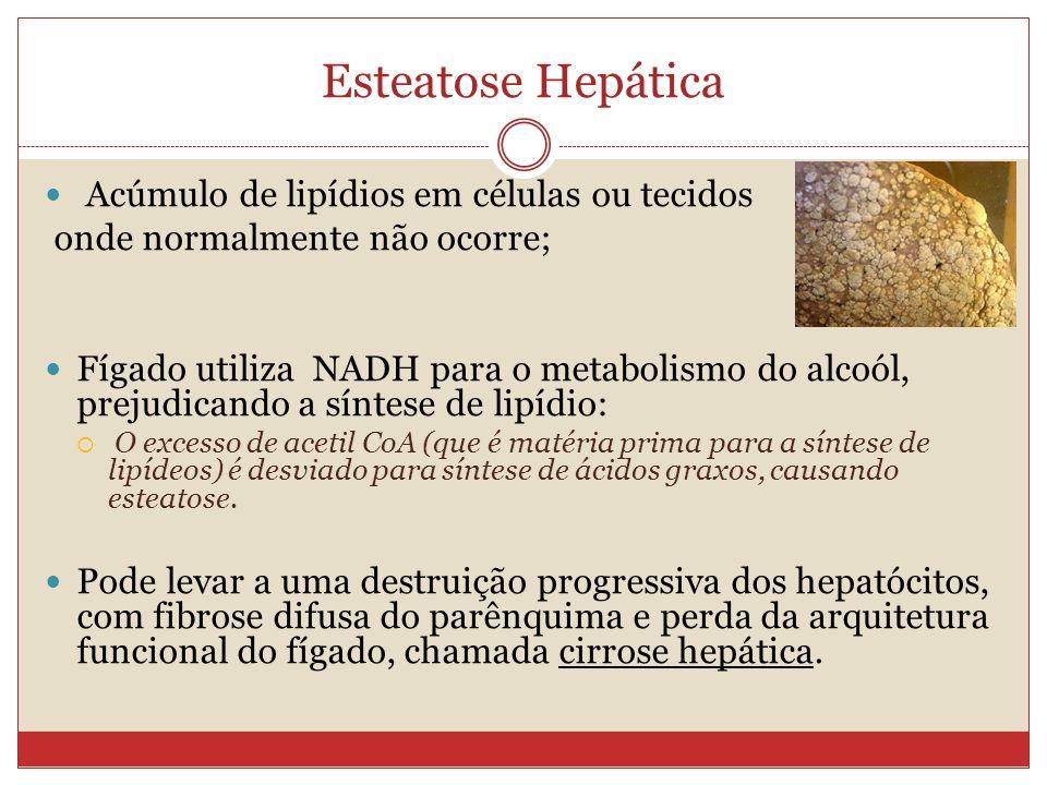 Esteatose Hepática Acúmulo de lipídios em células ou tecidos