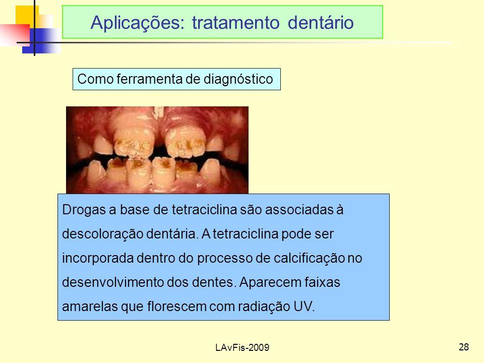 Aplicações: tratamento dentário