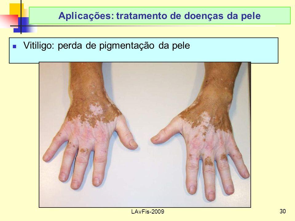 Aplicações: tratamento de doenças da pele