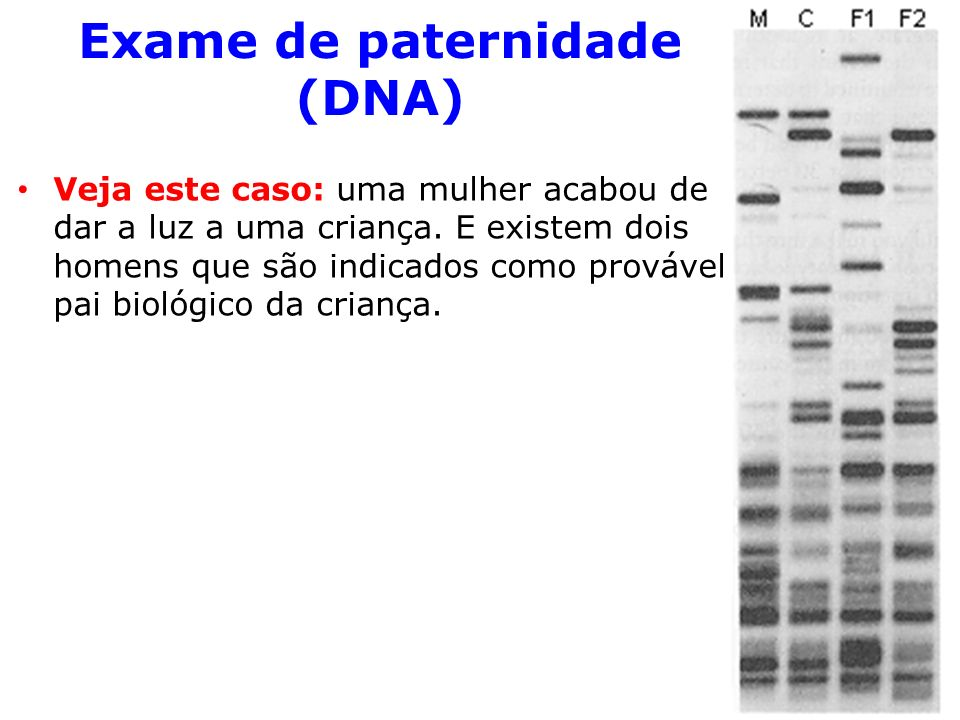 Exame de paternidade (DNA)