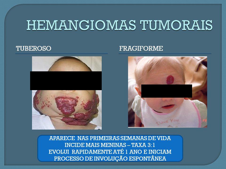 HEMANGIOMAS TUMORAIS TUBEROSO FRAGIFORME