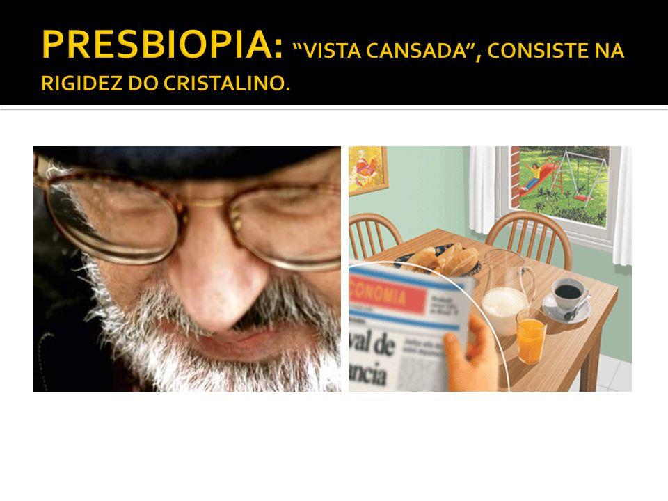 PRESBIOPIA: VISTA CANSADA , CONSISTE NA RIGIDEZ DO CRISTALINO.