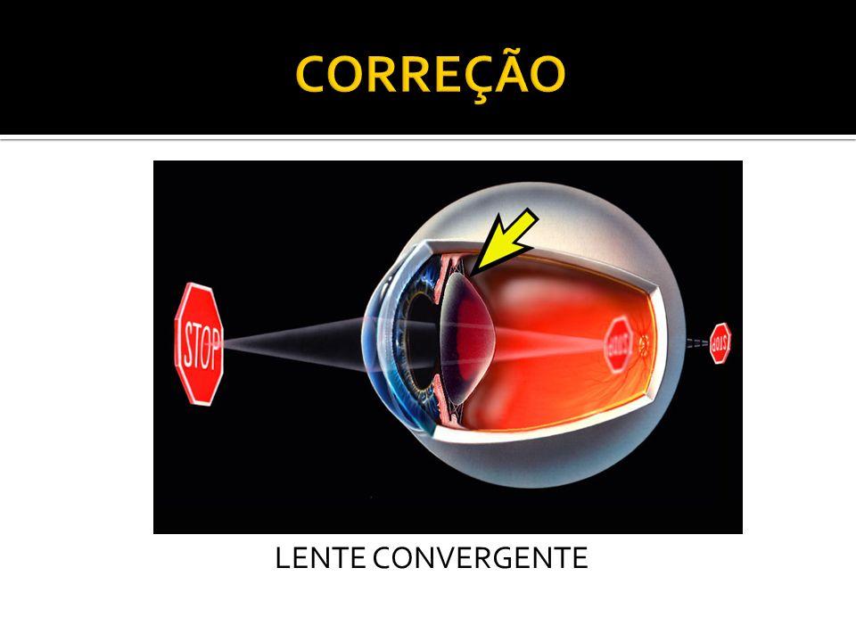 CORREÇÃO LENTE CONVERGENTE