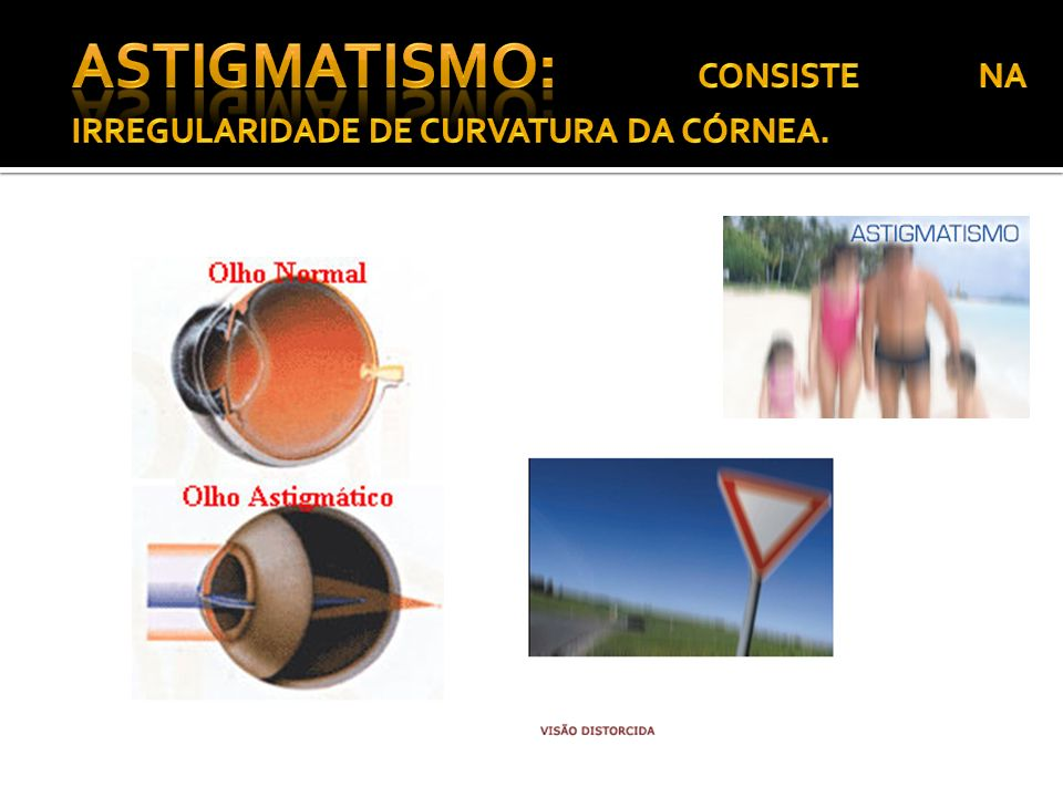 Astigmatismo: CONSISTE NA IRREGULARIDADE DE CURVATURA DA CÓRNEA.