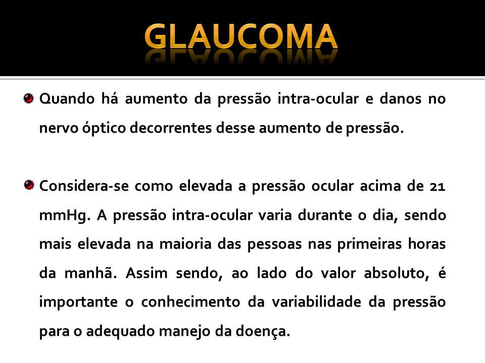 GLAUCOMA Quando há aumento da pressão intra-ocular e danos no nervo óptico decorrentes desse aumento de pressão.