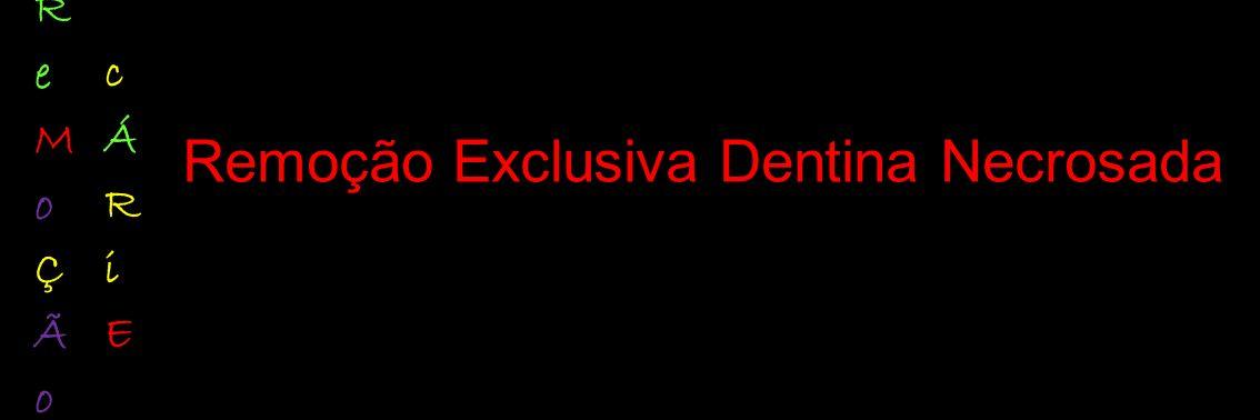 Remoção Exclusiva Dentina Necrosada