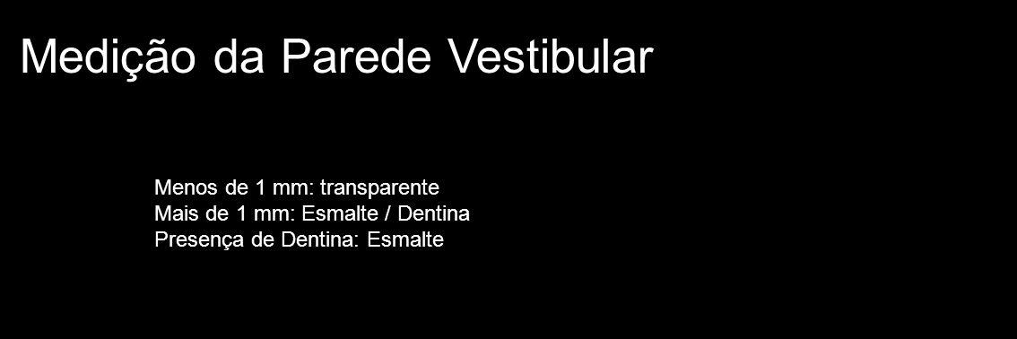 Medição da Parede Vestibular