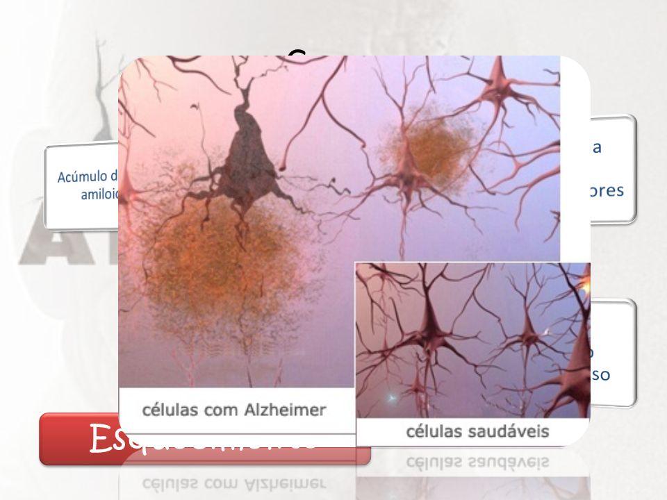 Causa Acúmulo de beta amiloide. Degeneração neural. Decréscimo na síntese de neurotransmissores.