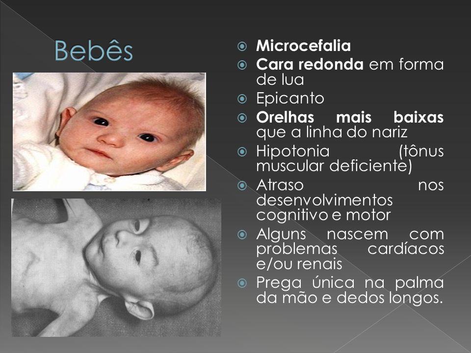 Bebês Microcefalia Cara redonda em forma de lua Epicanto