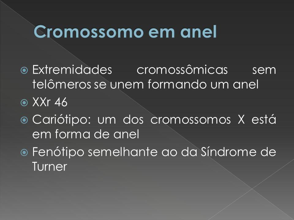 Cromossomo em anel Extremidades cromossômicas sem telômeros se unem formando um anel. XXr 46. Cariótipo: um dos cromossomos X está em forma de anel.
