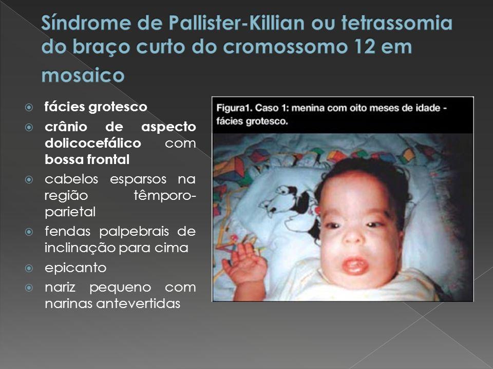 Síndrome de Pallister-Killian ou tetrassomia do braço curto do cromossomo 12 em mosaico