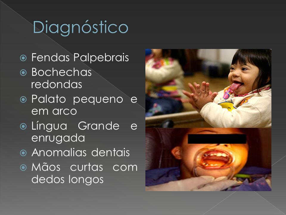 Diagnóstico Fendas Palpebrais Bochechas redondas