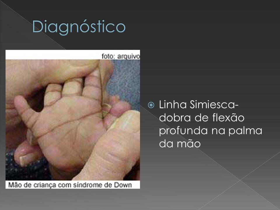 Diagnóstico Linha Simiesca- dobra de flexão profunda na palma da mão